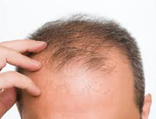 Just how common is hair loss?