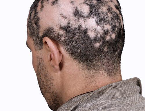 什么是斑片状脱发?