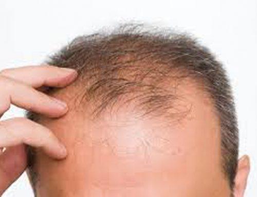 脱发有多么普遍呢?